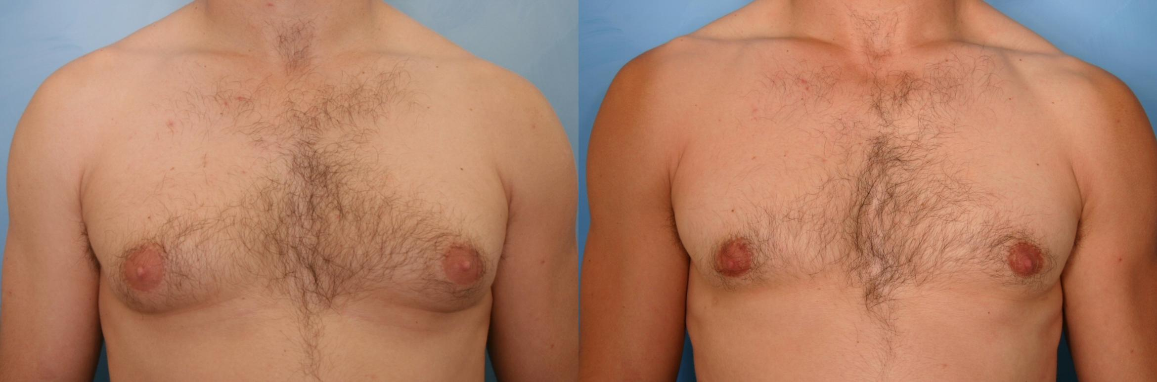 Male Breast Reduction Case 44 Before & After View #1 | Naples, FL | Kent V. Hasen, M.D.