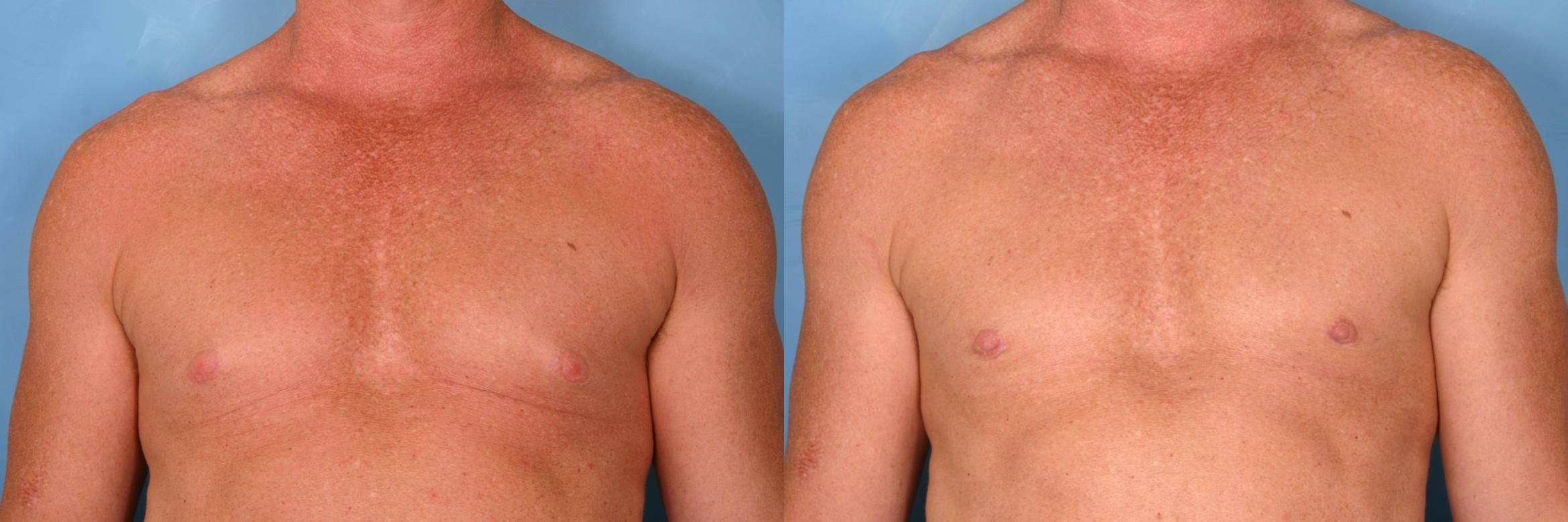 Male Breast Reduction Case 77 Before & After View #1 | Naples, FL | Kent V. Hasen, M.D.