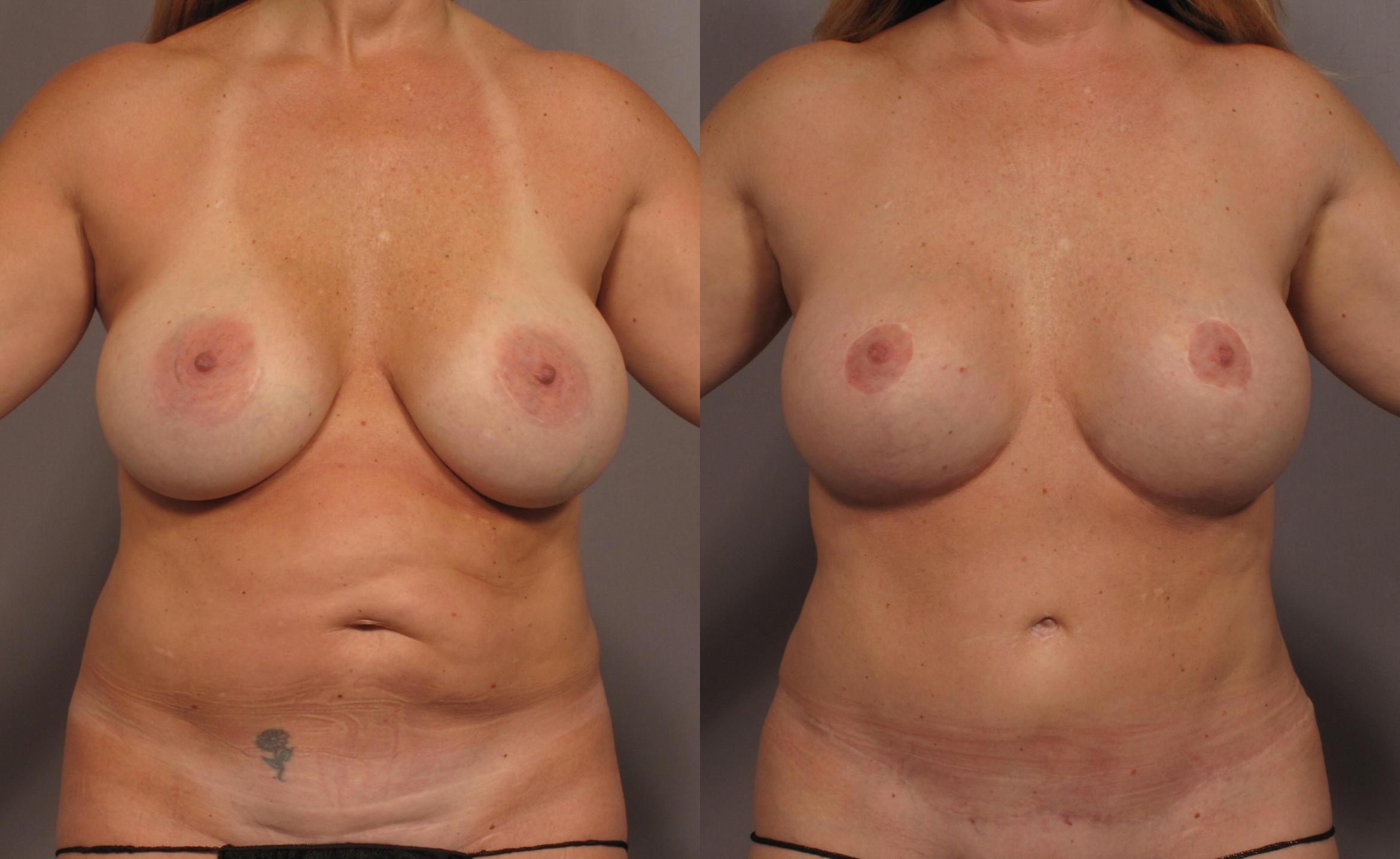Mommy Makeover Case 336 Before & After View #1 | Naples, FL | Kent V. Hasen, M.D.