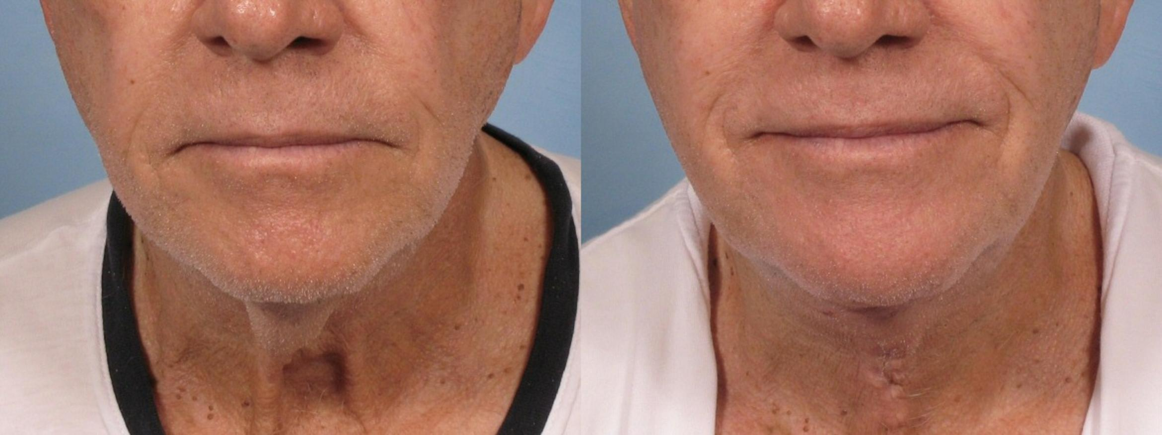Neck Lift Case 187 Before & After View #1 | Naples, FL | Kent V. Hasen, M.D.