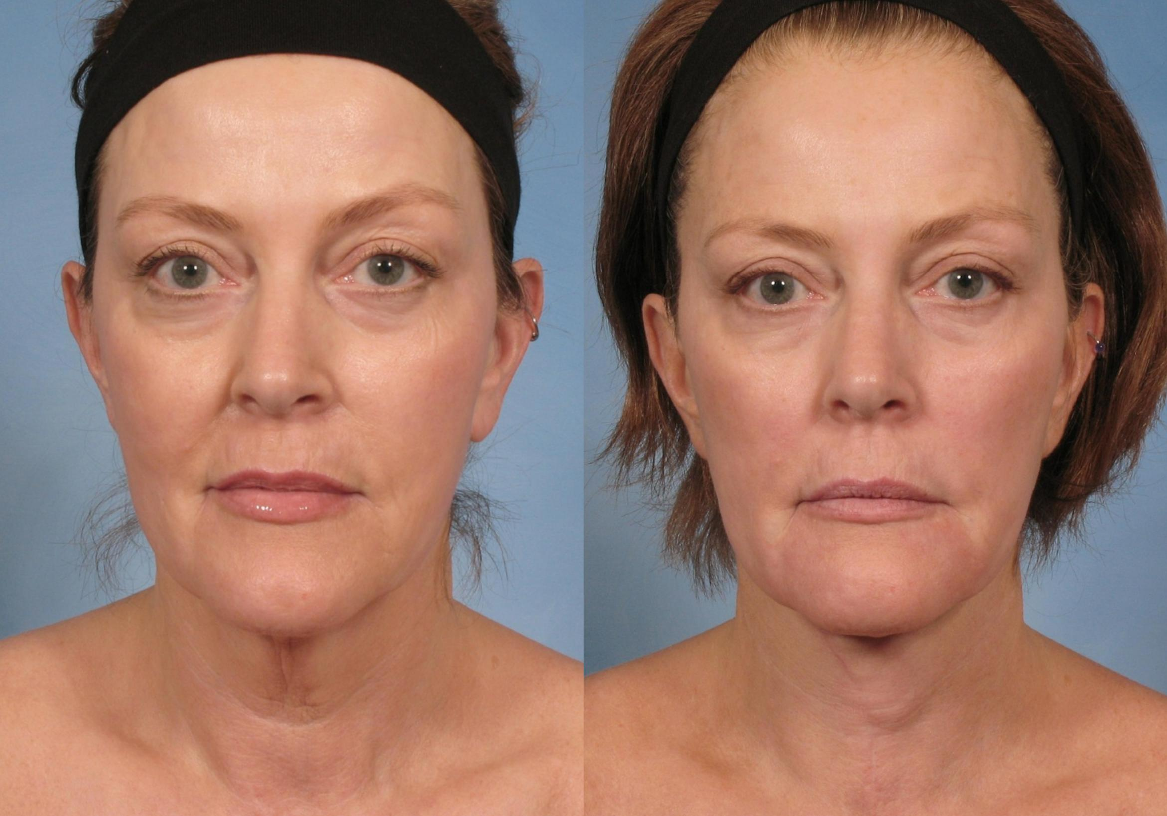 Neck Lift Case 188 Before & After View #1 | Naples, FL | Kent V. Hasen, M.D.