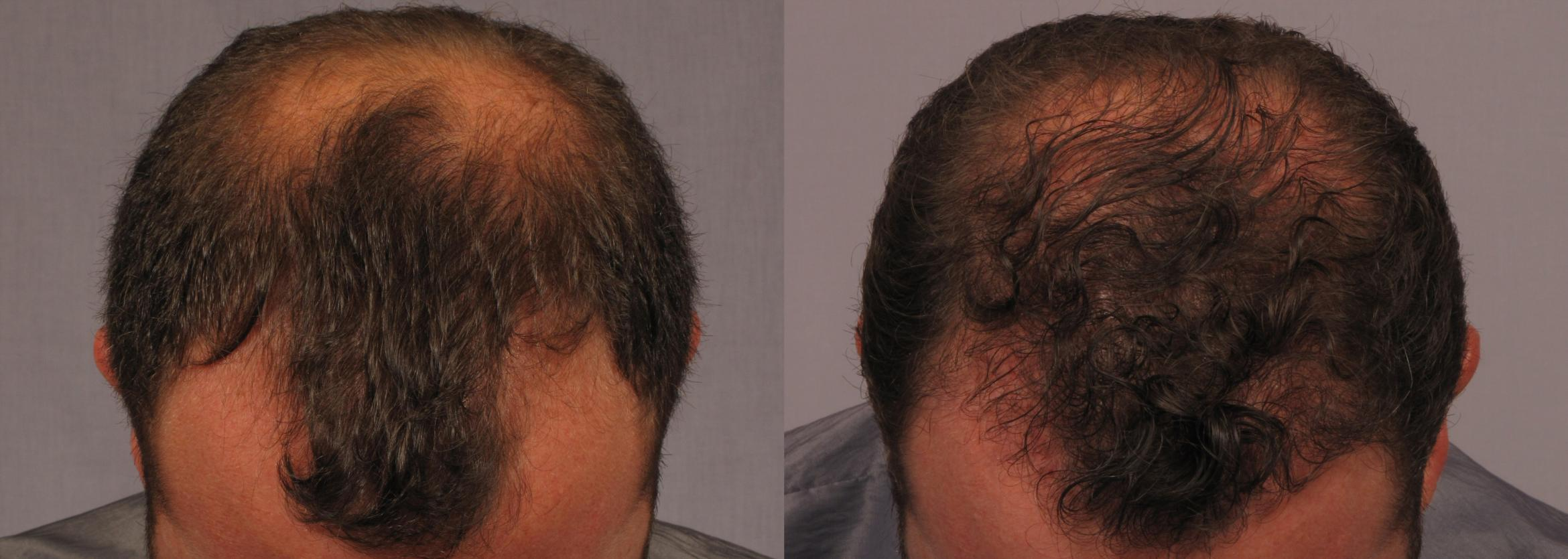 NeoGraft Hair Transplant Case 298 Before & After View #1 | Naples, FL | Kent V. Hasen, M.D.