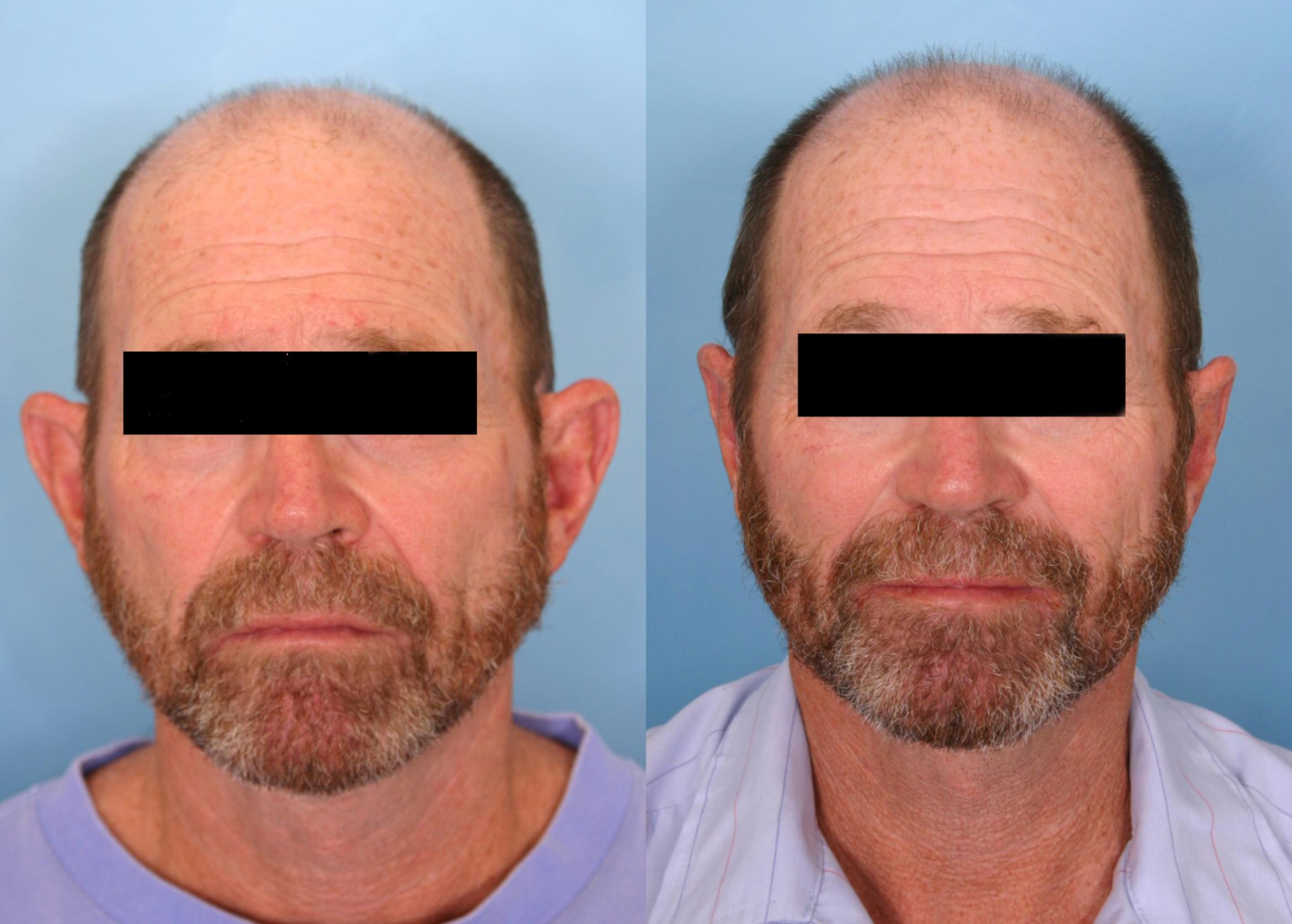 Otoplasty Case 46 Before & After View #1 | Naples, FL | Kent V. Hasen, M.D.