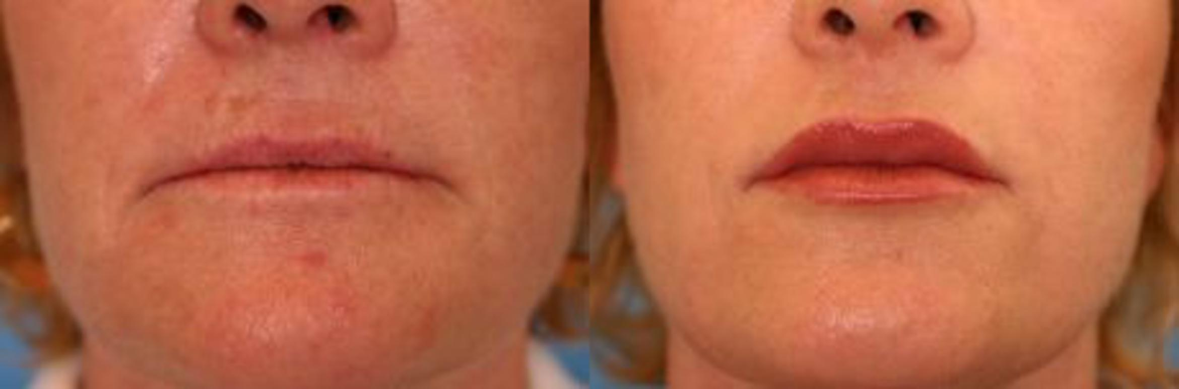 Restylane® Case 13 Before & After View #1 | Naples, FL | Kent V. Hasen, M.D.