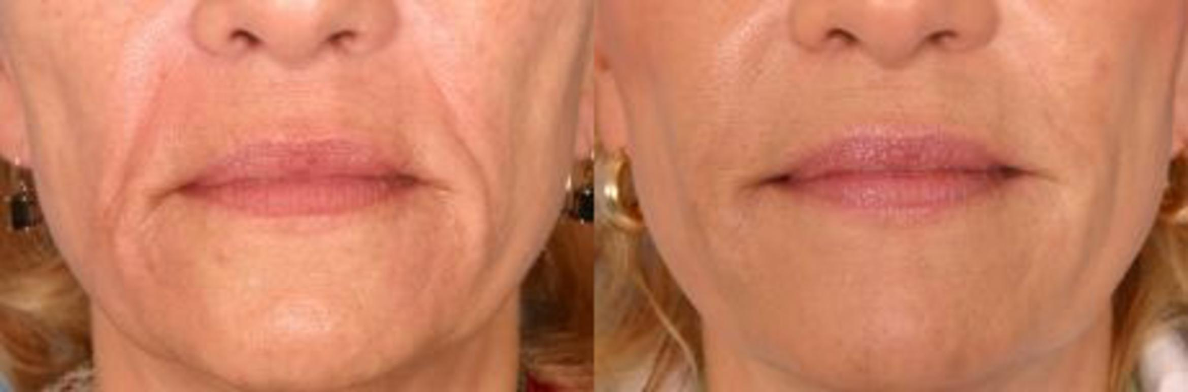 Restylane® Case 14 Before & After View #1 | Naples, FL | Kent V. Hasen, M.D.