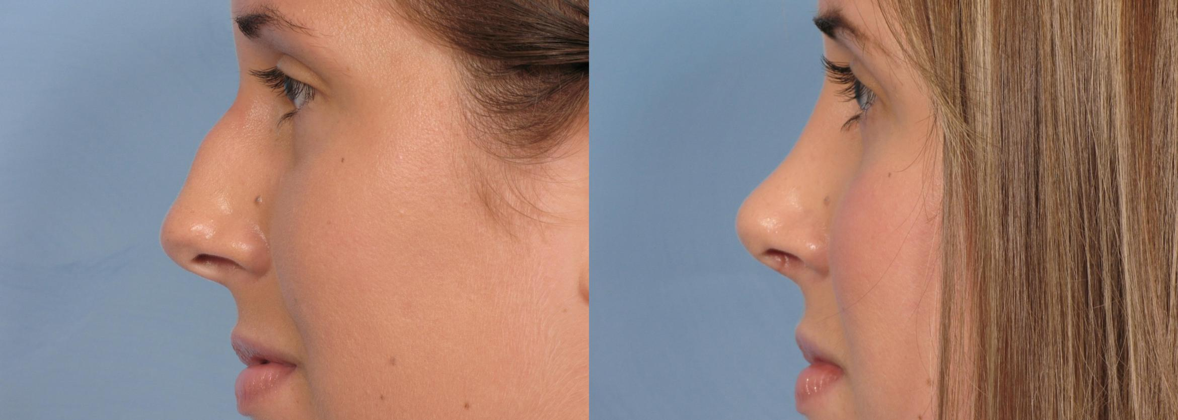 Rhinoplasty (Nose Reshaping) Case 91 Before & After View #1 | Naples, FL | Kent V. Hasen, M.D.