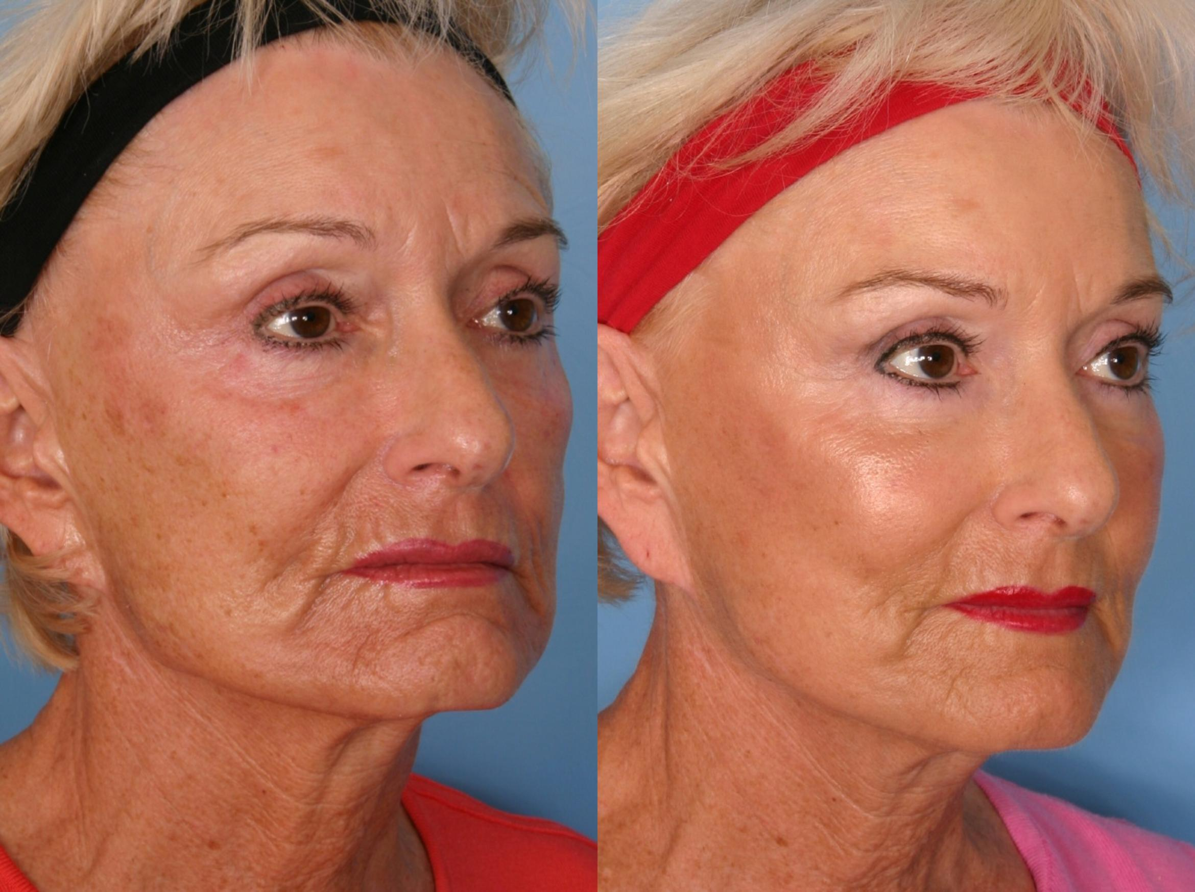 Sculptra® Case 64 Before & After View #2 | Naples, FL | Kent V. Hasen, M.D.