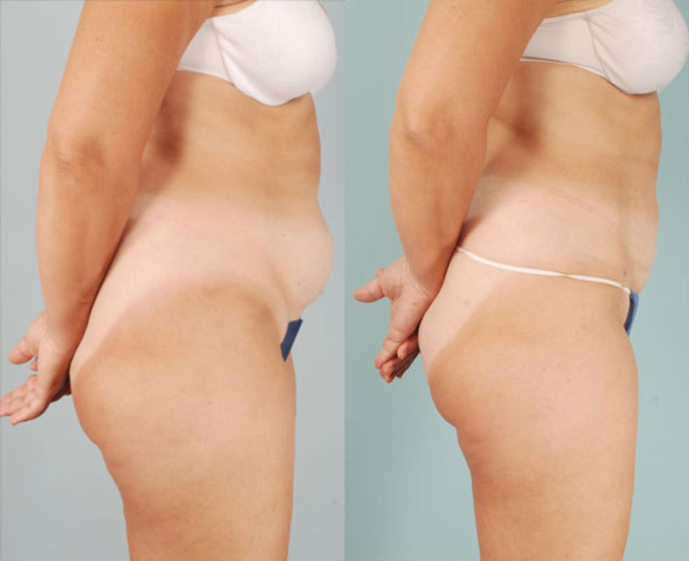 Smart Lipo Case 291 Before & After View #1 | Naples, FL | Kent V. Hasen, M.D.