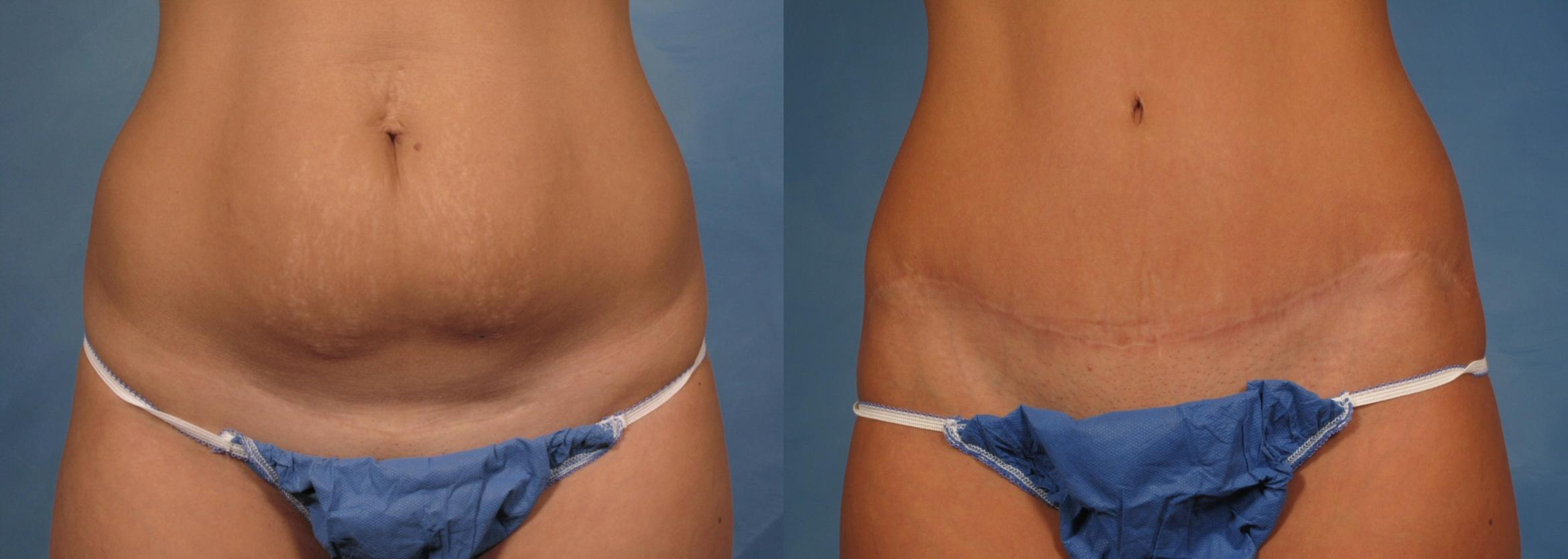 Tummy Tuck Case 170 Before & After View #1 | Naples, FL | Kent V. Hasen, M.D.
