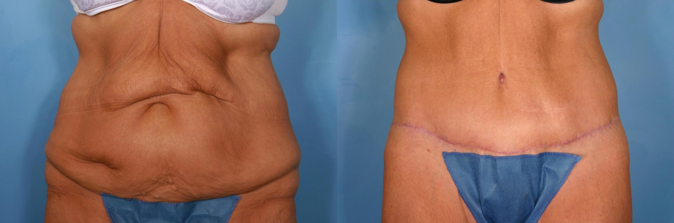 Tummy Tuck Case 21 Before & After View #1 | Naples, FL | Kent V. Hasen, M.D.