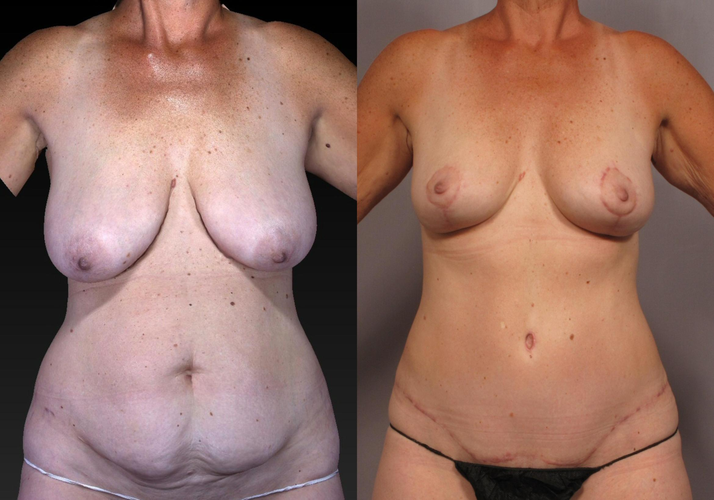 Tummy Tuck Case 313 Before & After View #1 | Naples, FL | Kent V. Hasen, M.D.